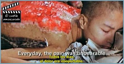 Sumiteru Taniguchi, una de las víctimas que ofrece su testimonio, con sus terribles heridas